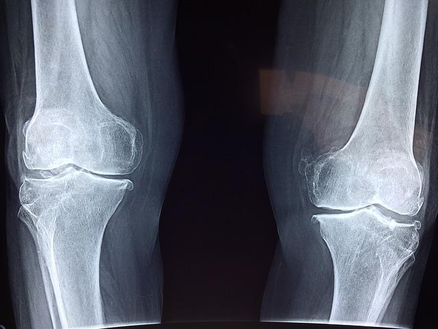 Артроз, наколенники или протезирование коленного сустава, что лучше